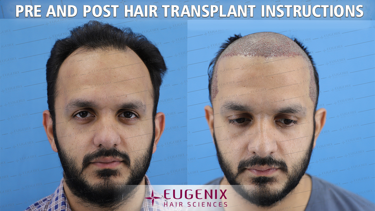 pre and post hair transplant instructions