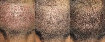 recovery post hair transplant