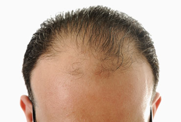 Why do some men bald and some don't?