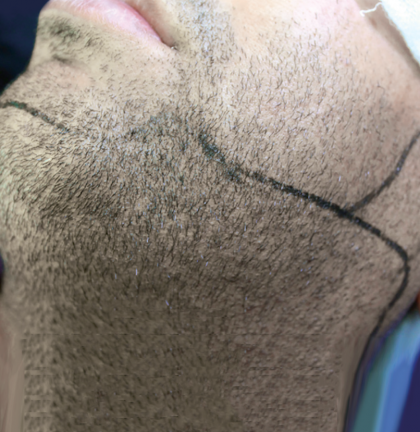 body and scalp hair