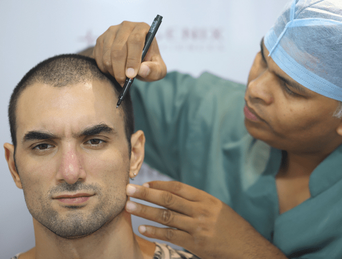 Best Hair Transplant Clinic for International Patients