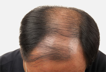 Unshaven & Long Hair Transplantation