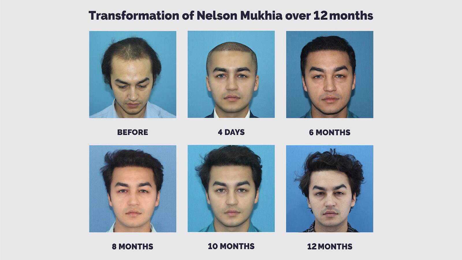Best Hair Transplant And Hair Loss Treatment In India By Expert Surgeons